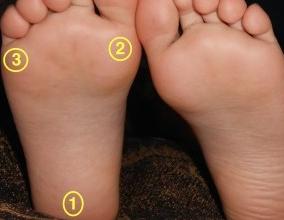 tripod-foot